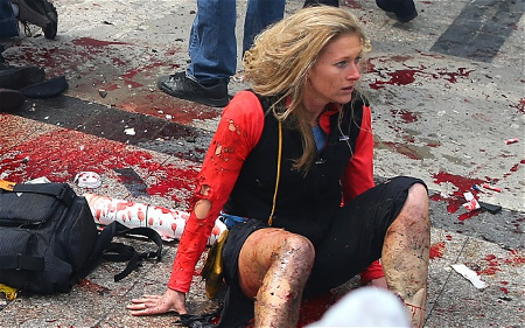 The Exact same problem. No blood or broken skin with the shredded costuming. I'm glad she's ok.