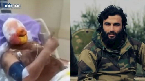 """Abu Homs"" before and after he was wounded."