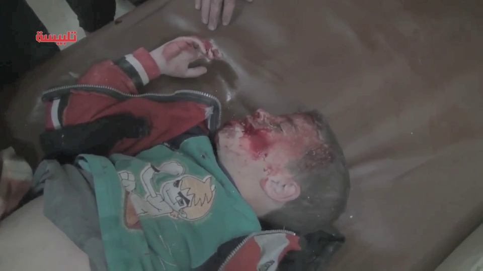 Child wounded by Syrian/Russian strike is tended to in an Idlib field hospital. January 2016.