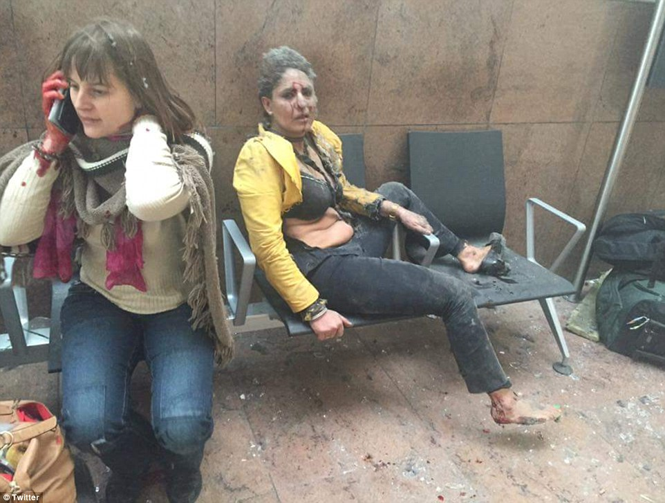 Survivors of the airport attack in the aftermath.