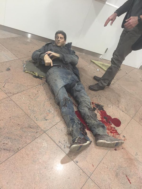 Slightly wounded civilian at Zaventem airport.